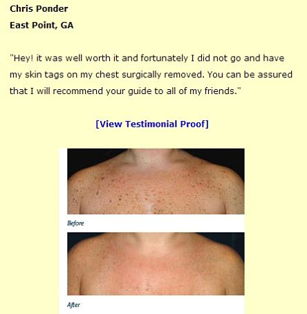 Moles, warts, and skin tags removal comment