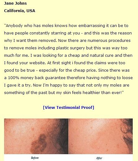 Moles, warts, and skin tags removal comments