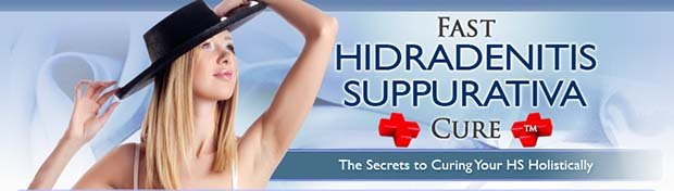 Fast hidradenitis suppurativa cure ebook review