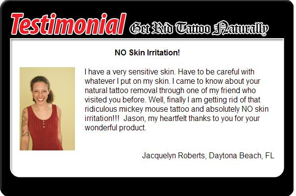 Get rid tattoo naturally reviews