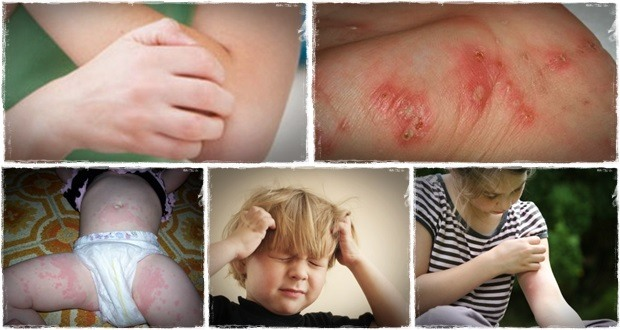 The scabies 24 hour natural remedy report