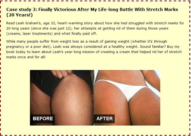 How to get rid of ugly stretch marks comments