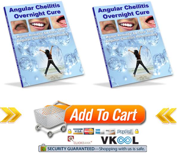 home remedies for angular cheilitis angular cheilitis overnight cure