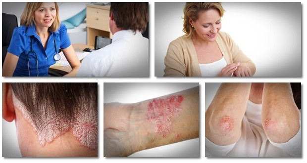how to control psoriasis naturally fast psoriasis cure