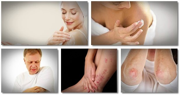 how to control psoriasis with diet fast psoriasis cure