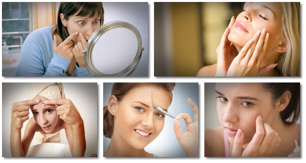 natural ways to clear acne overnight 14 days acne cure