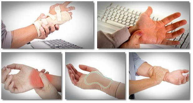 carpal tunnel home treatment review carpal tunnel secrets unleashed system