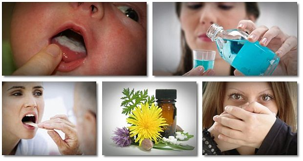 home remedies for oral thrush for babies