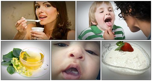 home remedies for oral thrush in toddlers