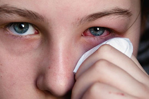 home remedies for pink eye review