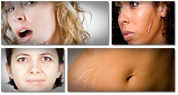 home remedies for scars from acne
