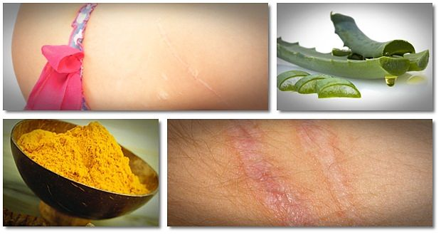 home remedies for scars from stitches