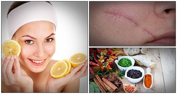 home remedies for scars on lips