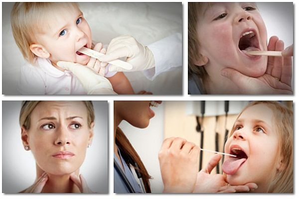 home remedies for tonsillitis in babies