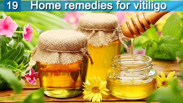36 Natural Home Remedies For Vitiligo Disease Treatment Quickly Page 2