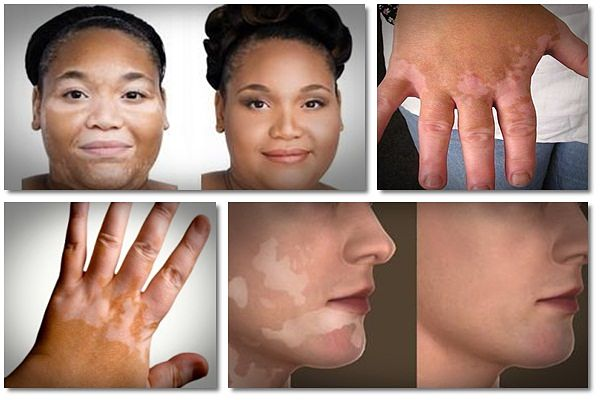 home remedies for vitiligo guide