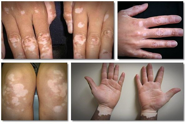 home remedies for vitiligo pdf
