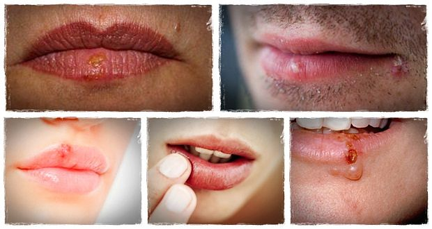 how to get rid of cold sores naturally download