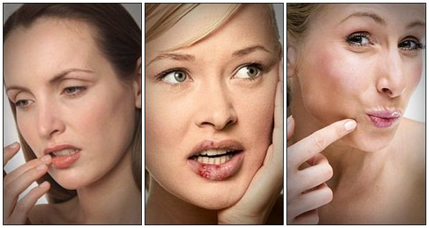 how to get rid of cold sores naturally free