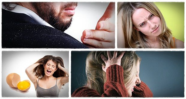 how to treat dandruff at home for men