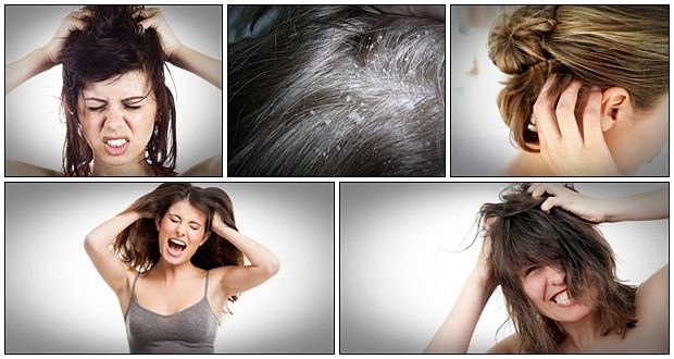 how to treat dandruff at home free