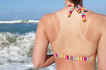 how to treat sunburn itch
