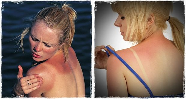 how to treat sunburn quickly