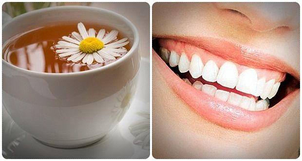 home remedies for gum disease download