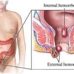 Easy hemorrhoids cure review – all about a remedy for hemorrhoids