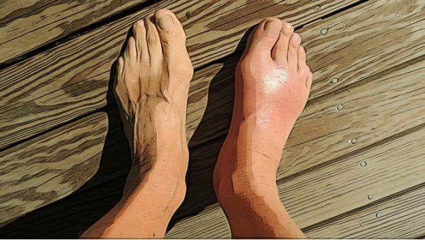 gout fast and naturally with easy tips