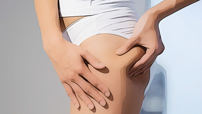 what cellulite really