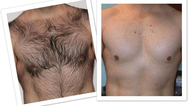 How To Remove Chest Hair Naturally