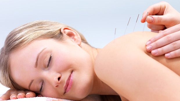 Apply The Acupuncture Therapy