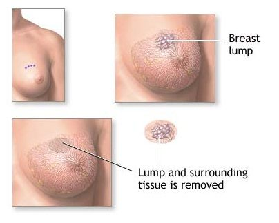 previous benign breast lump review