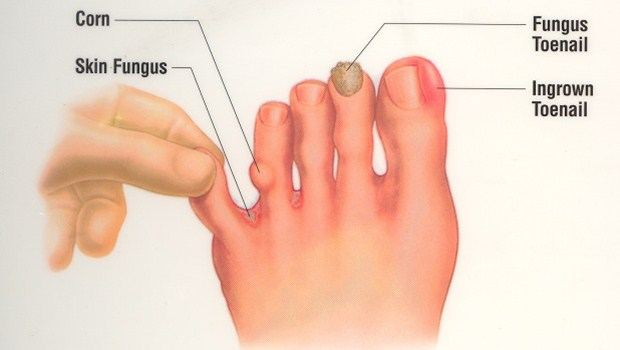 basic rules to fix ingrown toenails dos dont