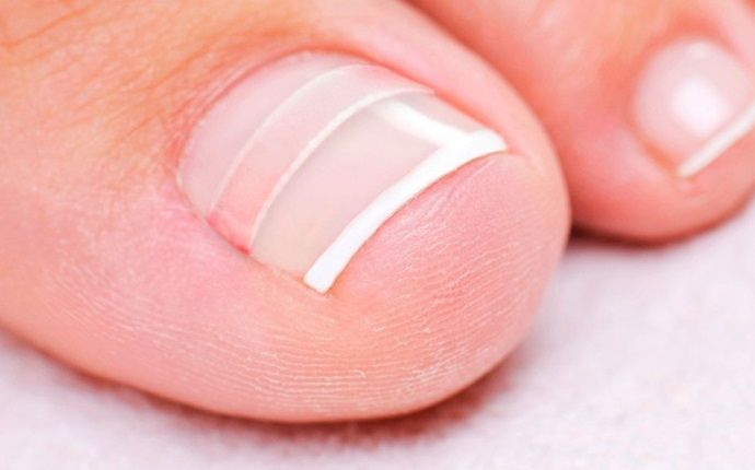 how to stop ingrown toenails - cotton wedge under your toenails