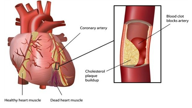 coronary artery disease download