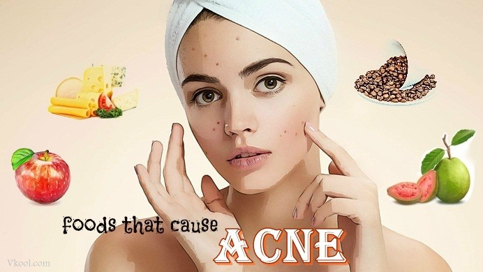 http://vkool.com/wp-content/uploads/2014/09/foods-that-cause-acne.jpg
