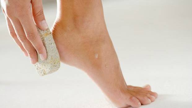 pamper your feet and soften tough calluses download