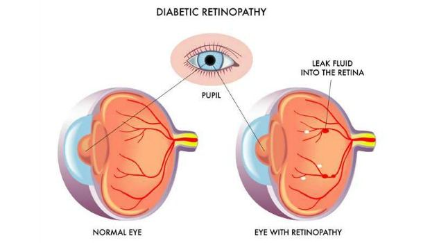 retinopathy or eye blood vessel damage download