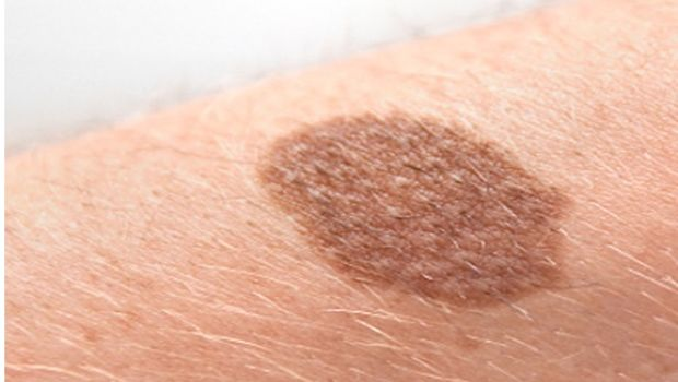common skin disorders