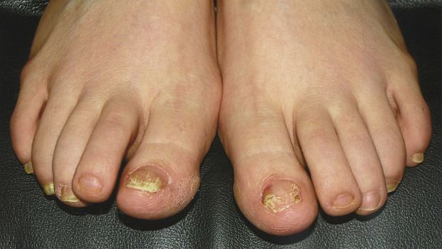 home remedies for nail fungus