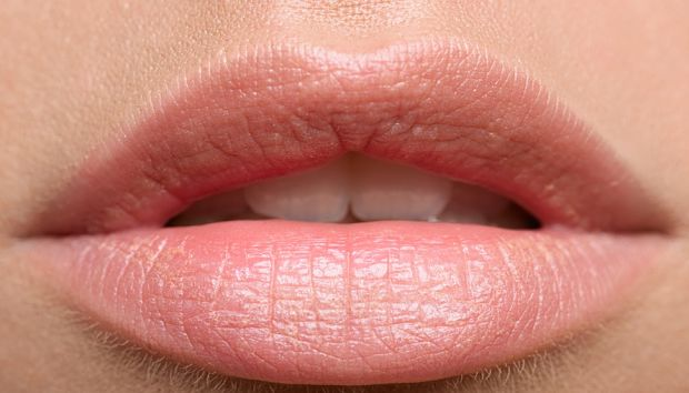how to get rid of dry lips