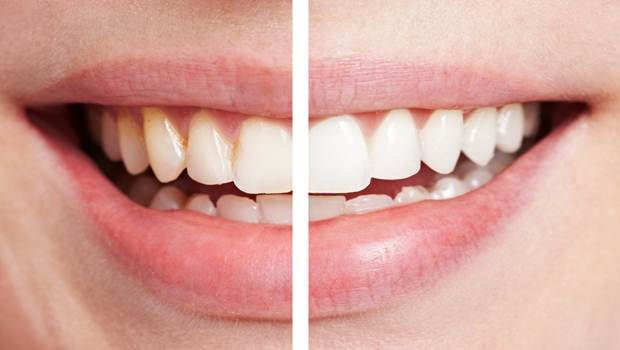 how to remove teeth stains
