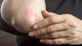 how to prevent psoriasis