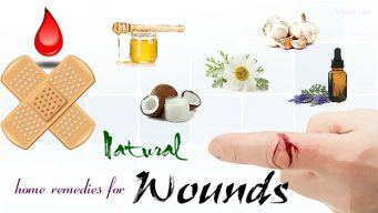 home remedies for wounds on face