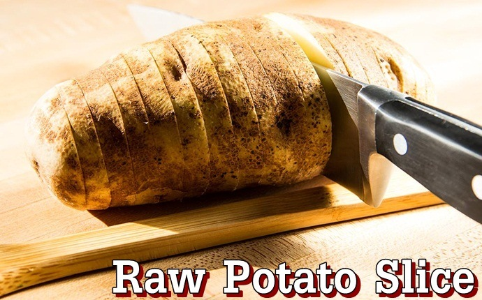 home remedies for abscess tooth - raw potato slice