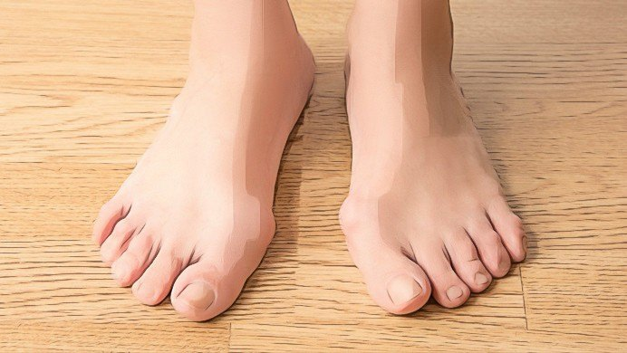 home remedies for bunions pain