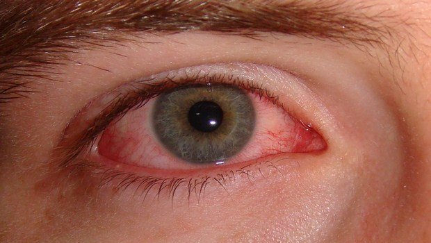 home remedies for eye infections-suggestion for eye infection