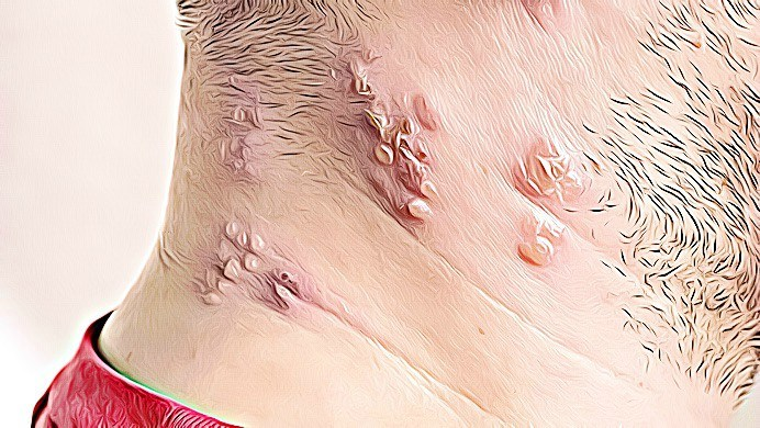 home remedies for shingles